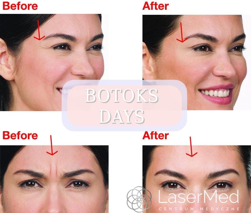Botoks-bydgoszcz-lasermed